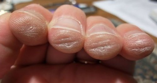 photo image of guitar string worn fingertips